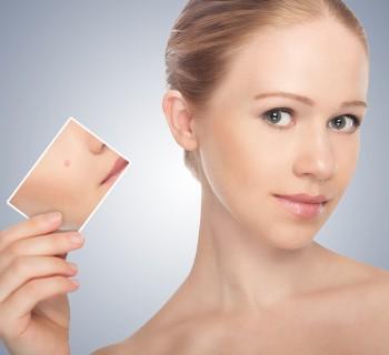 makeup_acne